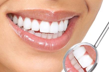دو روش طبیعی برای سفید کردن دندان ها