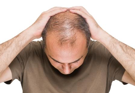 ریزش موی مردان چه علتی دارد؟