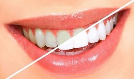 عوامل عجیب تغییر رنگ دندان