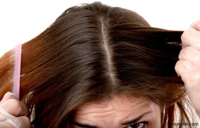 درمان های خانگی برای رفع شوره سر