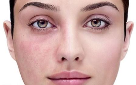 علت قرمزی پوست صورت و  راههای درمان آن