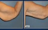 افتادگی پوست بعد از کاهش وزن