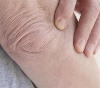 علائم ۶ بیماری مزمن را روی پوست نادیده نگیرید