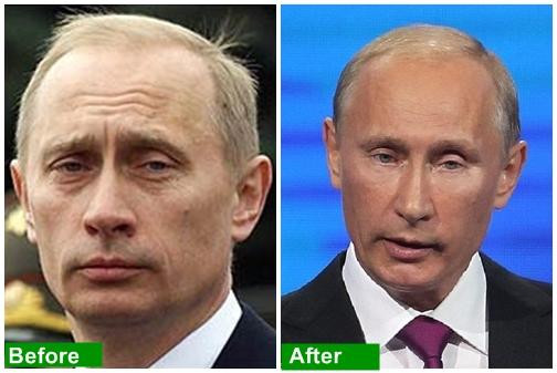 ولادمیر پوتین ۶۴ ساله با چه روشی جوانسازی کرده است؟ عکس قبل و بعد از عمل