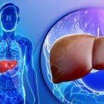 خوردنی های مفید و مضر برای کبد چرب