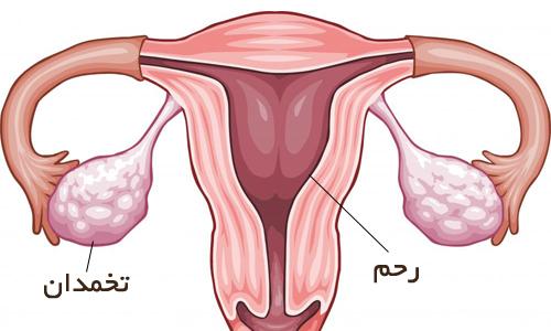 برداشتن تخمدان