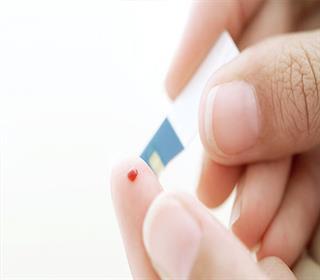 دیابت ملیتوس
