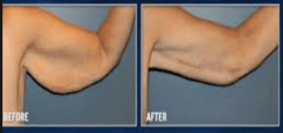 افتادگی پوست بعد از کاهش وزن را چگونه برطرف کنیم؟