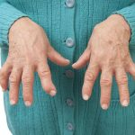 راههای کنترل آرتریت روماتوئید در محل کار