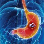 عوامل بروز سرطان معده